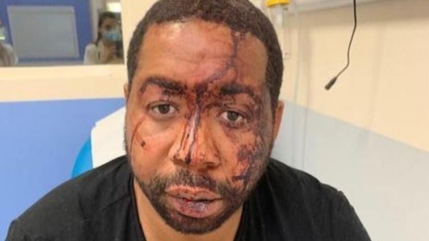 Michel : le symbole des violences policières